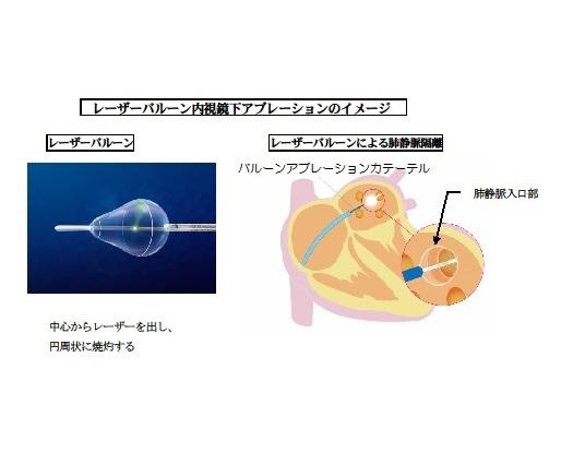 レーザーバルーン内視鏡下アブレーションのイメージ
